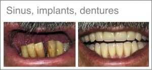 jacky-teeth-with-treatment-name